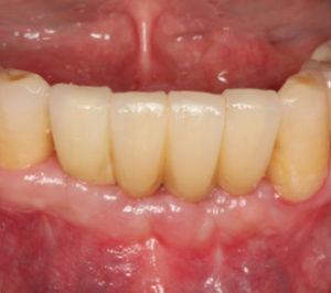 bridge-clinical-case2